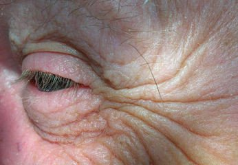 wrinkles on an old person's face